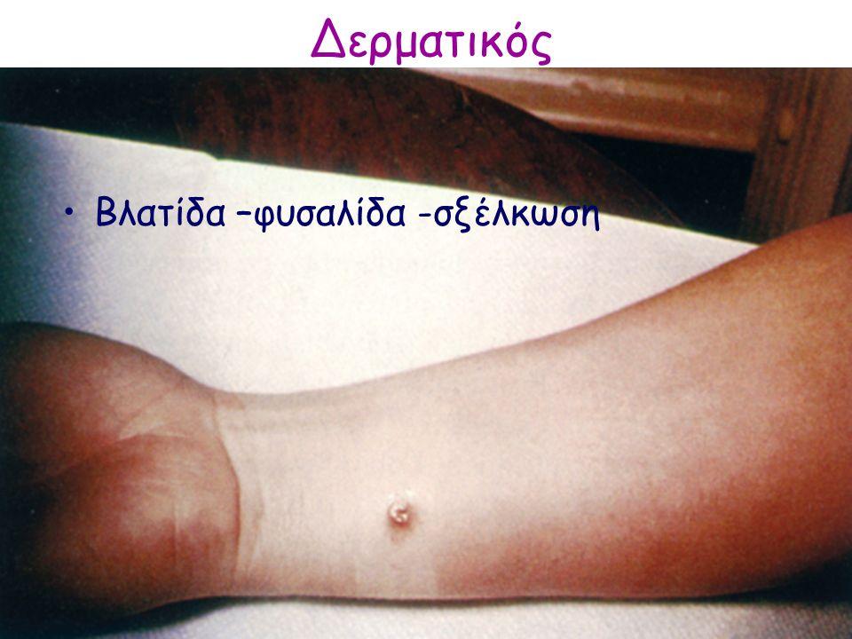 Δερματικός Βλατίδα –φυσαλίδα -σξέλκωση