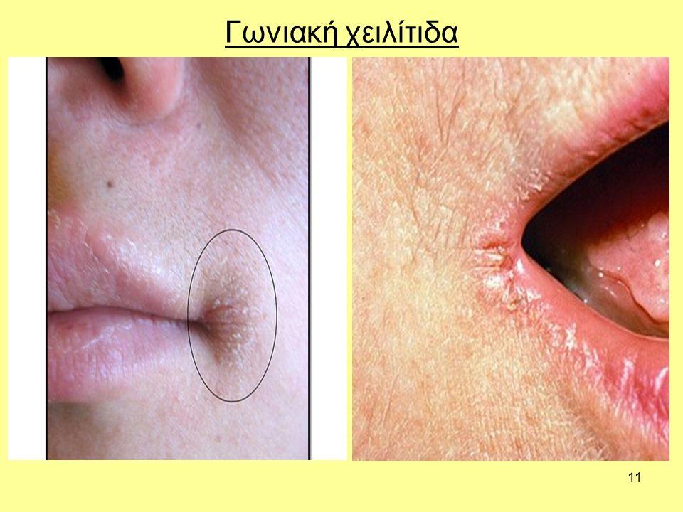 11 Γωνιακή χειλίτιδα