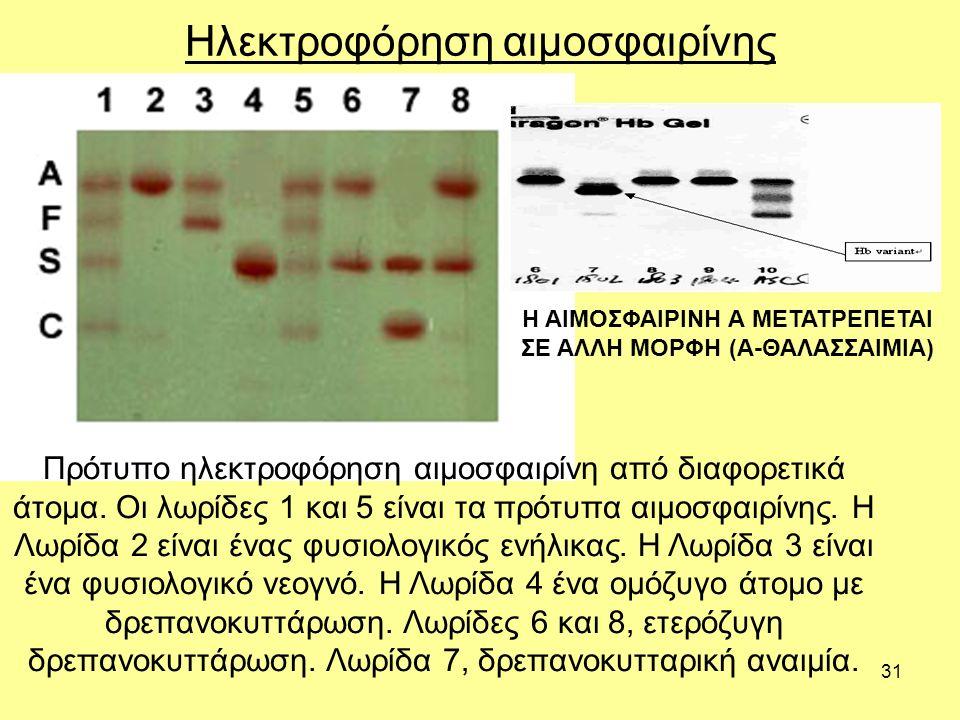 31 Ηλεκτροφόρηση αιμοσφαιρίνης Πρότυπο ηλεκτροφόρηση αιμοσφαιρίνη από διαφορετικά άτομα.