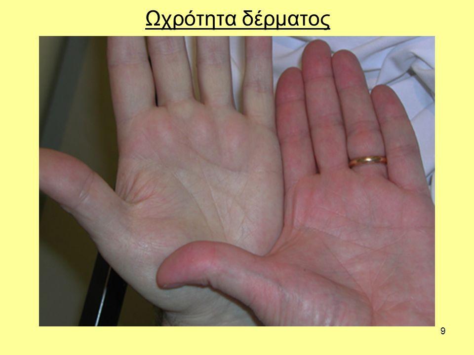 9 Ωχρότητα δέρματος