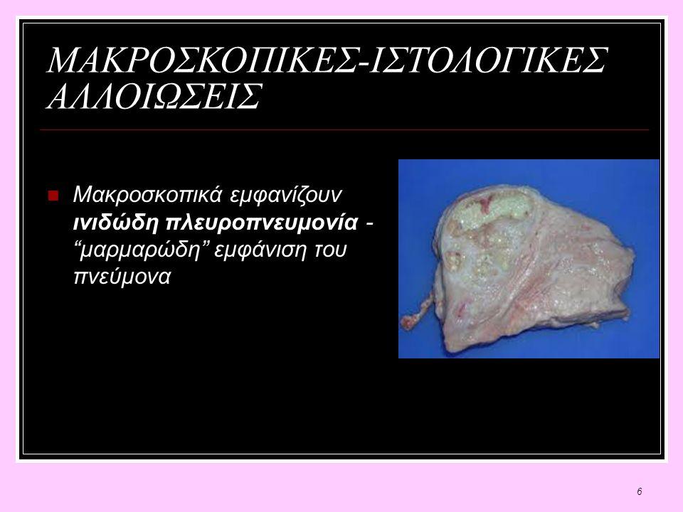 6 ΜΑΚΡΟΣΚΟΠΙΚΕΣ-ΙΣΤΟΛΟΓΙΚΕΣ ΑΛΛΟΙΩΣΕΙΣ Μακροσκοπικά εμφανίζουν ινιδώδη πλευροπνευμονία - μαρμαρώδη εμφάνιση του πνεύμονα