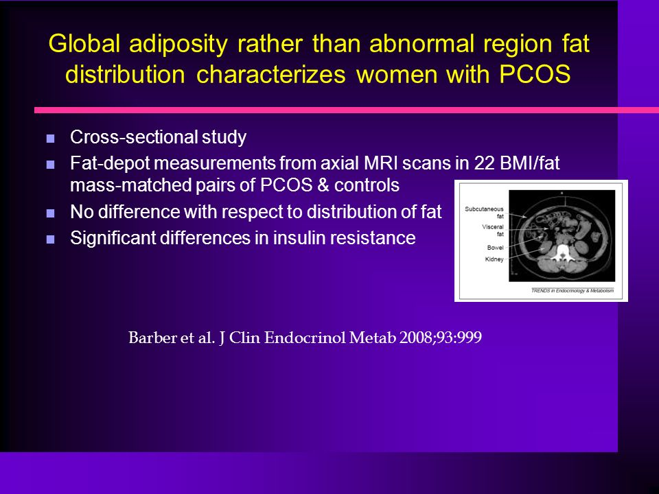 Global adiposity rather than abnormal region fat distribution characterizes women with PCOS n Cross-sectional study n Fat-depot measurements from axial MRI scans in 22 BMI/fat mass-matched pairs of PCOS & controls n No difference with respect to distribution of fat n Significant differences in insulin resistance Barber et al.