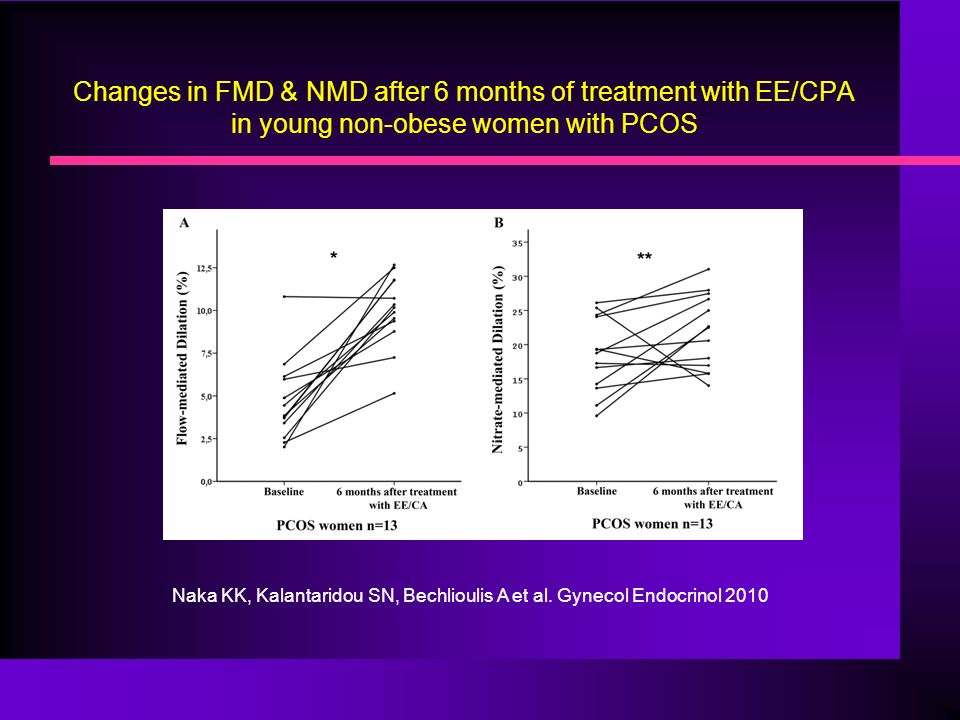 Changes in FMD & NMD after 6 months of treatment with EE/CPA in young non-obese women with PCOS Naka KK, Kalantaridou SN, Bechlioulis A et al.