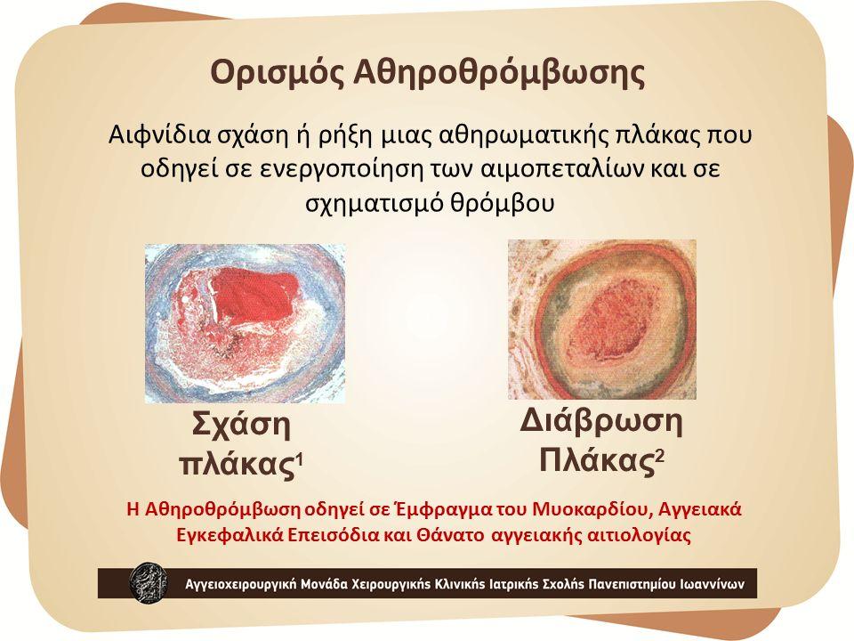 Ορισμός Αθηροθρόμβωσης Αιφνίδια σχάση ή ρήξη μιας αθηρωματικής πλάκας που οδηγεί σε ενεργοποίηση των αιμοπεταλίων και σε σχηματισμό θρόμβου Η Αθηροθρόμβωση οδηγεί σε Έμφραγμα του Μυοκαρδίου, Αγγειακά Εγκεφαλικά Επεισόδια και Θάνατο αγγειακής αιτιολογίας Σχάση πλάκας 1 Διάβρωση Πλάκας 2