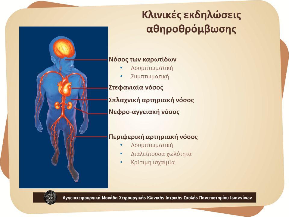 Κλινικές εκδηλώσεις αθηροθρόμβωσης Νόσος των καρωτίδων Ασυμπτωματική Συμπτωματική Στεφανιαία νόσος Σπλαχνική αρτηριακή νόσος Νεφρο-αγγειακή νόσος Περιφερική αρτηριακή νόσος Ασυμπτωματική Διαλείπουσα χωλότητα Κρίσιμη ισχαιμία