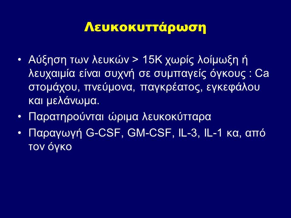 Λευκοκυττάρωση Αύξηση των λευκών > 15Κ χωρίς λοίμωξη ή λευχαιμία είναι συχνή σε συμπαγείς όγκους : Ca στομάχου, πνεύμονα, παγκρέατος, εγκεφάλου και με