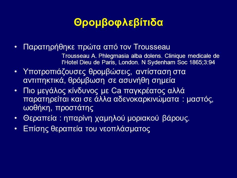 Θρομβοφλεβίτιδα Παρατηρήθηκε πρώτα από τον Trousseau Trousseau A. Phlegmasia alba dolens. Clinique medicale de l'Hotel Dieu de Paris, London. N Sydenh