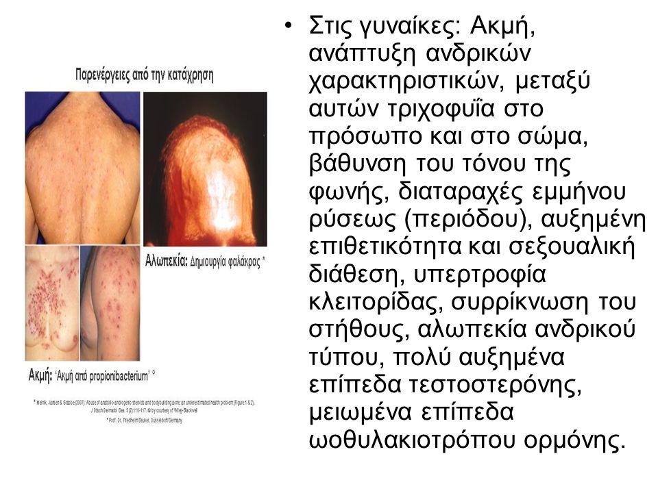 Στις γυναίκες: Ακμή, ανάπτυξη ανδρικών χαρακτηριστικών, μεταξύ αυτών τριχοφυΐα στο πρόσωπο και στο σώμα, βάθυνση του τόνου της φωνής, διαταραχές εμμήνου ρύσεως (περιόδου), αυξημένη επιθετικότητα και σεξουαλική διάθεση, υπερτροφία κλειτορίδας, συρρίκνωση του στήθους, αλωπεκία ανδρικού τύπου, πολύ αυξημένα επίπεδα τεστοστερόνης, μειωμένα επίπεδα ωοθυλακιοτρόπου ορμόνης.
