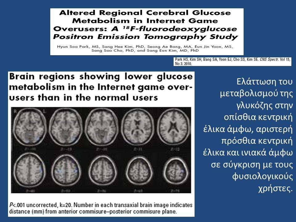 Ελάττωση του μεταβολισμού της γλυκόζης στην οπίσθια κεντρική έλικα άμφω, αριστερή πρόσθια κεντρική έλικα και ινιακά άμφω σε σύγκριση με τους φυσιολογικούς χρήστες.
