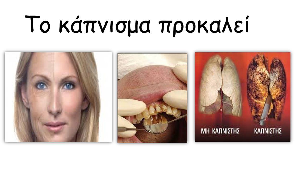 Το κάπνισμα προκαλεί