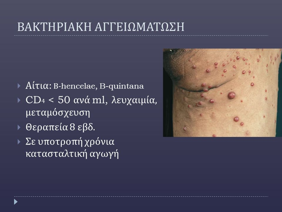 ΒΑΚΤΗΡΙΑΚΗ ΑΓΓΕΙΩΜΑΤΩΣΗ  Αίτια : Β -hencelae, B-quintana  CD 4 < 50 ανά ml, λευχαιμία, μεταμόσχευση  Θεραπεία 8 εβδ.