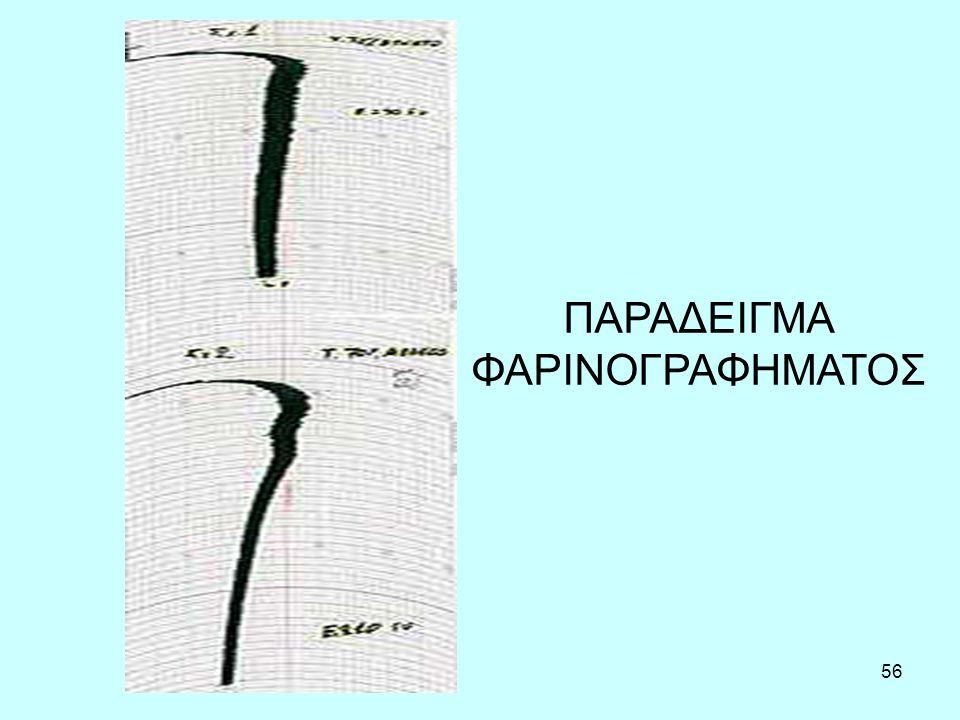 57 Φαρινογράφημα (Farinograph)