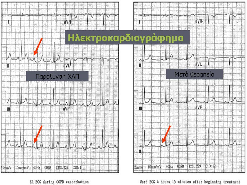 Ηλεκτροκαρδιογράφημα Παρόξυνση ΧΑΠ Μετά θεραπεία