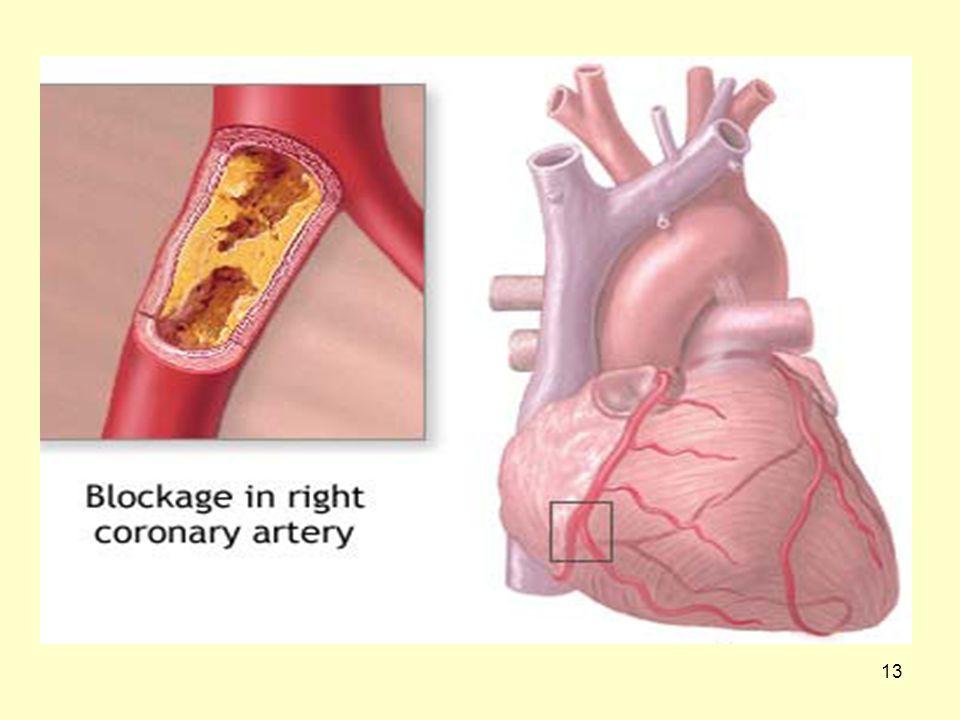 12 Αθηροσκλήρωση Με την πάροδο του χρόνου η αντίδραση αυτή οδηγεί στο να σχηματίζεται πλάκα που «χτίζεται» τοπικά και αποτελείται από χοληστερόλη και νεκρά μακροφάγα λευκά αιμοσφαίρια.