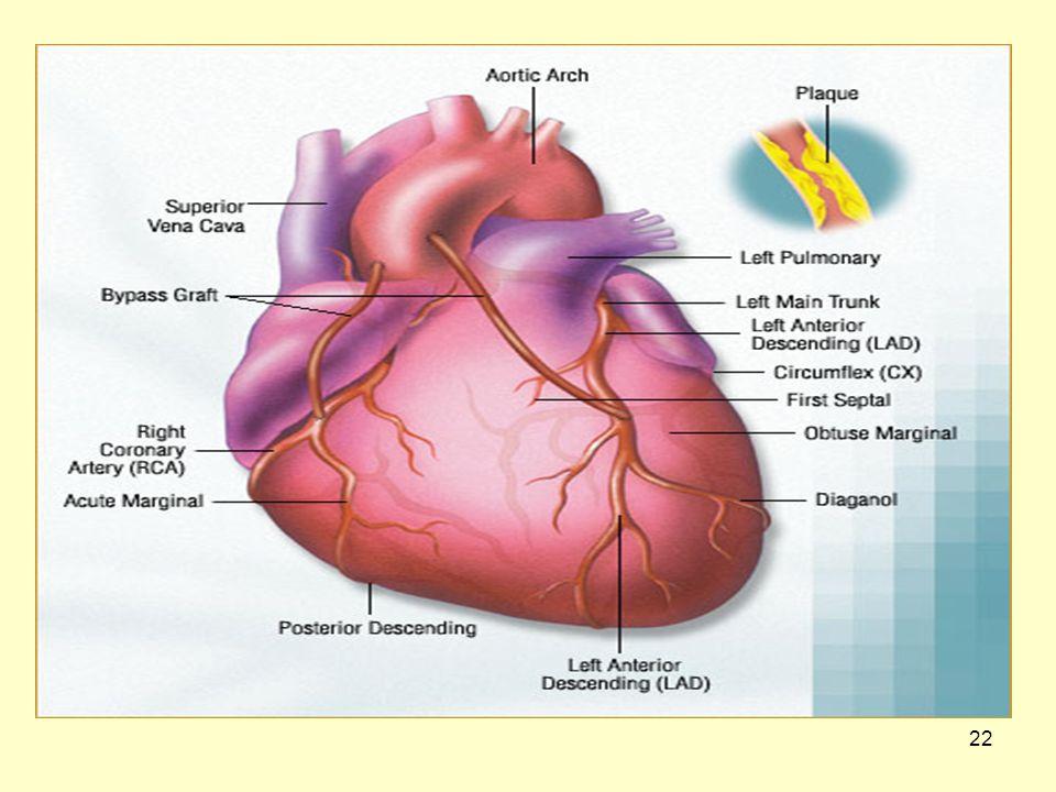 21 Εγχειρήσεις ανοιχτής καρδιάς Τι είναι αορτοστεφανιαία παρακάμψη ή Bypass.