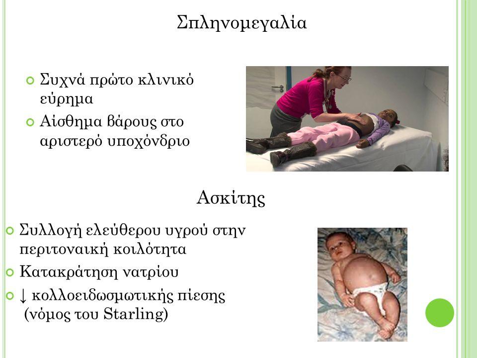 Συχνά πρώτο κλινικό εύρημα Αίσθημα βάρους στο αριστερό υποχόνδριο Συλλογή ελεύθερου υγρού στην περιτοναική κοιλότητα Κατακράτηση νατρίου ↓ κολλοειδωσμωτικής πίεσης (νόμος του Starling) Σπληνομεγαλία Ασκίτης