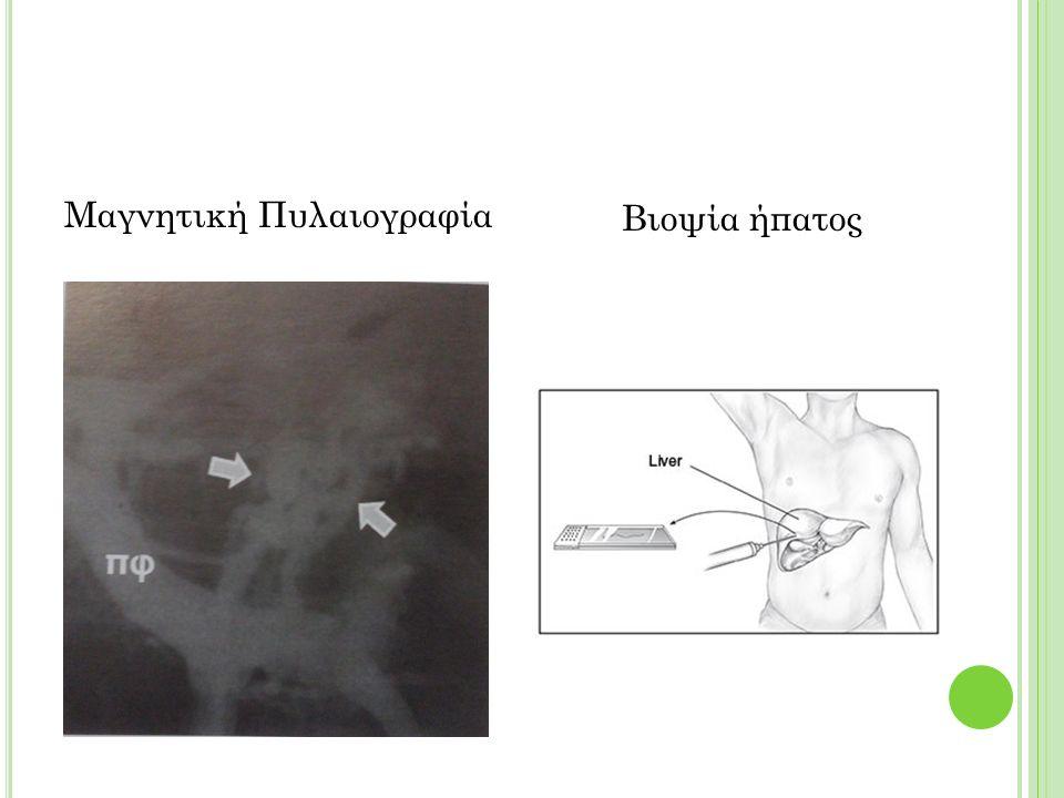 Μαγνητική Πυλαιογραφία Βιοψία ήπατος