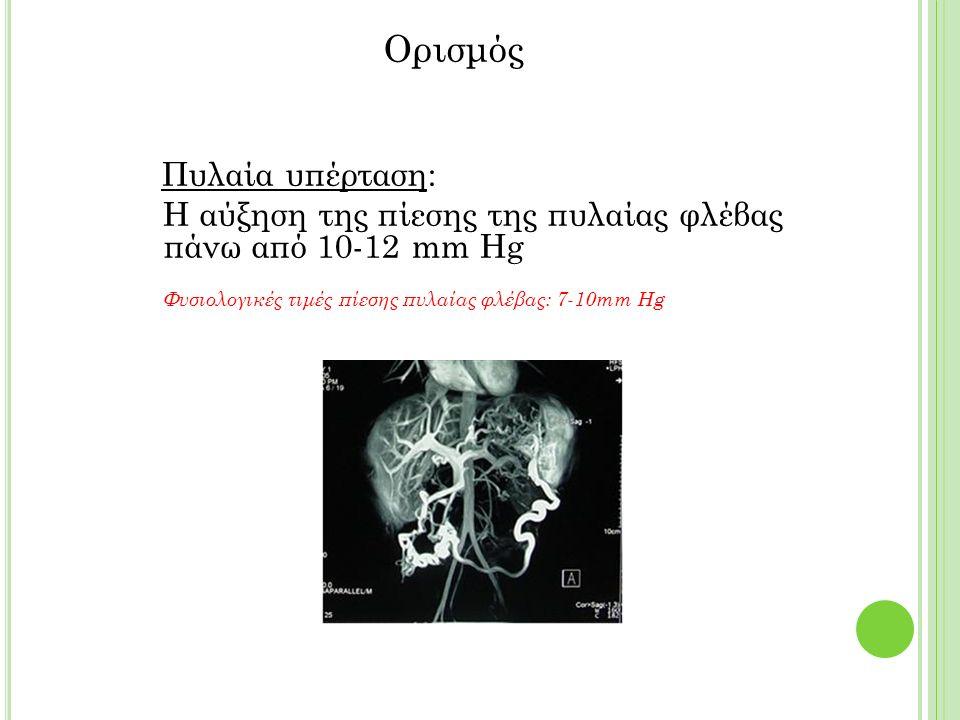 Ορισμός Πυλαία υπέρταση: Η αύξηση της πίεσης της πυλαίας φλέβας πάνω από 10-12 mm Hg Φυσιολογικές τιμές πίεσης πυλαίας φλέβας: 7-10mm Hg