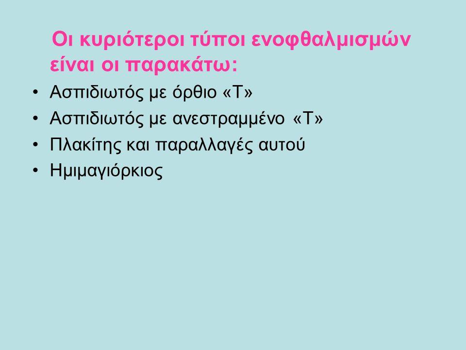 Οι κυριότεροι τύποι ενοφθαλμισμών είναι οι παρακάτω: Ασπιδιωτός με όρθιο «Τ» Ασπιδιωτός με ανεστραμμένο «Τ» Πλακίτης και παραλλαγές αυτού Ημιμαγιόρκιος