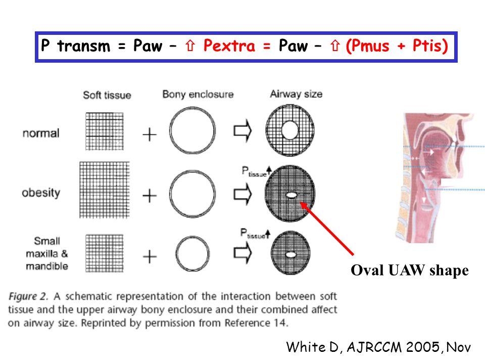 White D, AJRCCM 2005, Nov P transm = Paw –  Pextra = Paw –  (Pmus + Ptis) Oval UAW shape