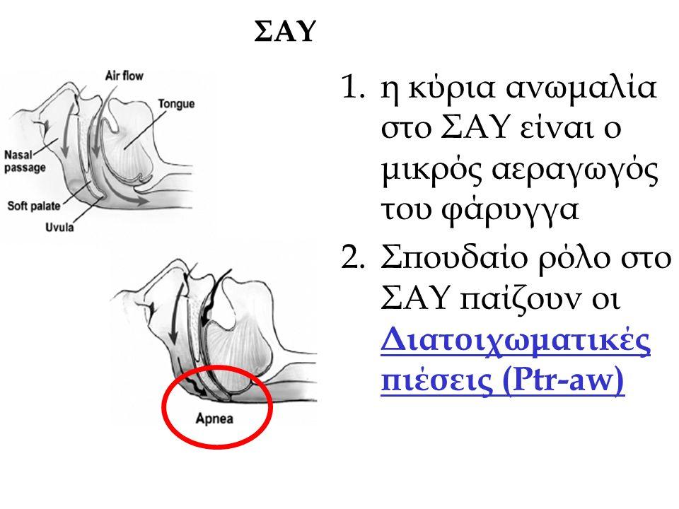 1.η κύρια ανωμαλία στο ΣΑΥ είναι ο μικρός αεραγωγός του φάρυγγα 2.Σπουδαίο ρόλο στο ΣΑΥ παίζουν οι Διατοιχωματικές πιέσεις (Ptr-aw) ΣΑΥ