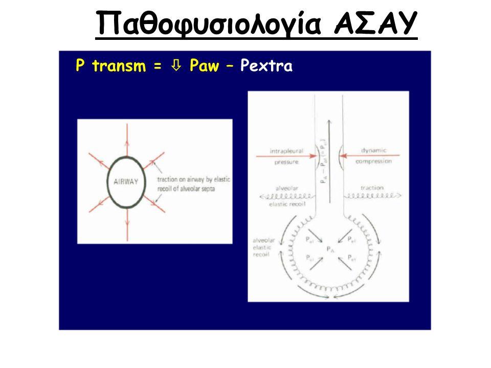 P transm =  Paw – Pextra Παθοφυσιολογία ΑΣΑΥ