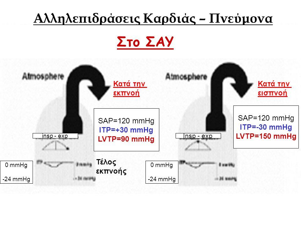 SAP=120 mmHg ITP=+30 mmHg LVTP=90 mmHg SAP=120 mmHg ITP=-30 mmHg LVTP=150 mmHg Τέλος εκπνοής Κατά την εισπνοή Αλληλεπιδράσεις Καρδιάς – Πνεύμονα 0 mmHg -24 mmHg 0 mmHg -24 mmHg insp - exp Insp - exp Κατά την εκπνοή Στο ΣΑΥ