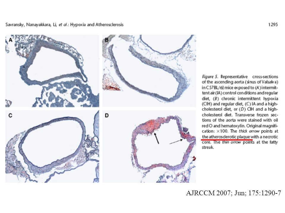 Am Col Cardiology 2008 Aug 19, vol 52 (8): 686-717