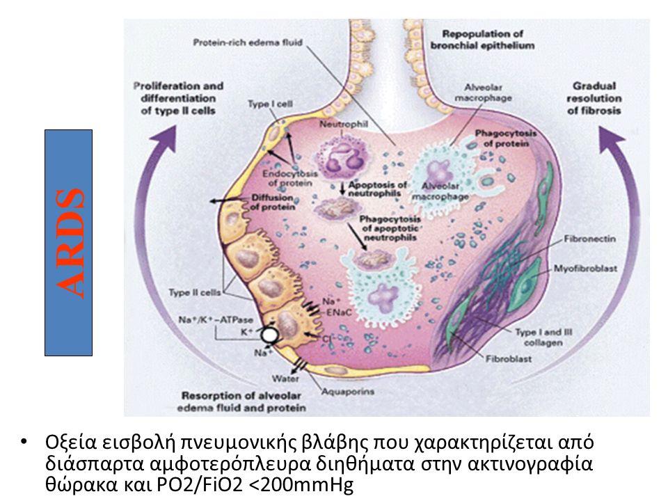 ARDS Οξεία εισβολή πνευμονικής βλάβης που χαρακτηρίζεται από διάσπαρτα αμφοτερόπλευρα διηθήματα στην ακτινογραφία θώρακα και PO2/FiO2 <200mmHg ARDS