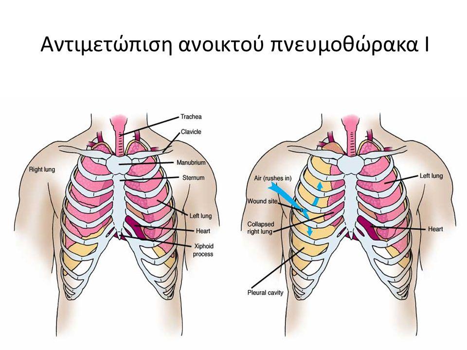 Αντιμετώπιση ανοικτού πνευμοθώρακα Ι