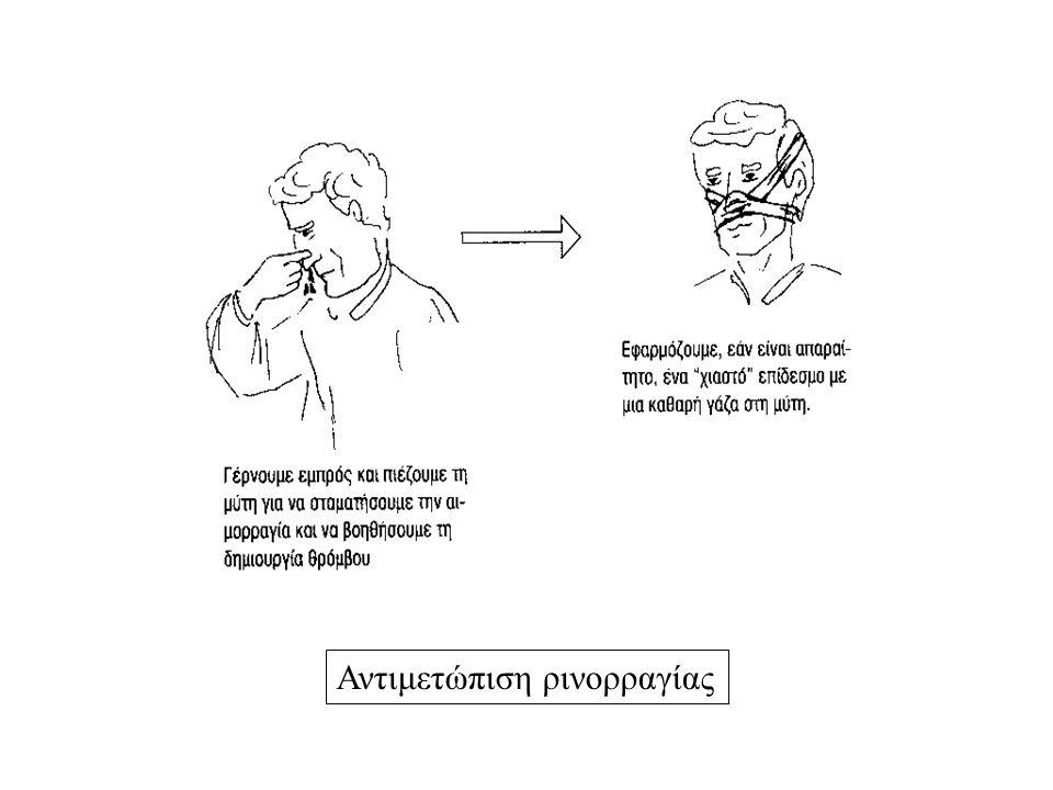 Αντιμετώπιση ρινορραγίας