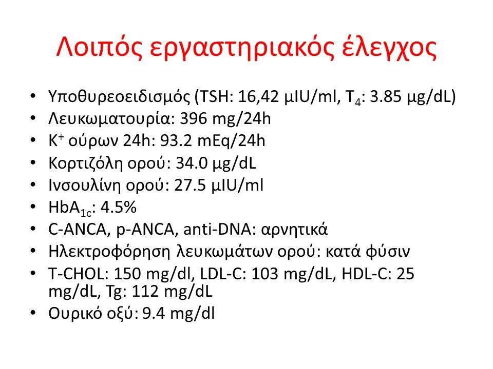 Λοιπός εργαστηριακός έλεγχος Υποθυρεοειδισμός (TSH: 16,42 μIU/ml, T 4 : 3.85 μg/dL) Λευκωματουρία: 396 mg/24h K + ούρων 24h: 93.2 mEq/24h Κορτιζόλη ορού: 34.0 μg/dL Ινσουλίνη ορού: 27.5 μIU/ml HbA 1c : 4.5% C-ANCA, p-ANCA, anti-DNA: αρνητικά Ηλεκτροφόρηση λευκωμάτων ορού: κατά φύσιν Τ-CHOL: 150 mg/dl, LDL-C: 103 mg/dL, HDL-C: 25 mg/dL, Tg: 112 mg/dL Ουρικό οξύ: 9.4 mg/dl