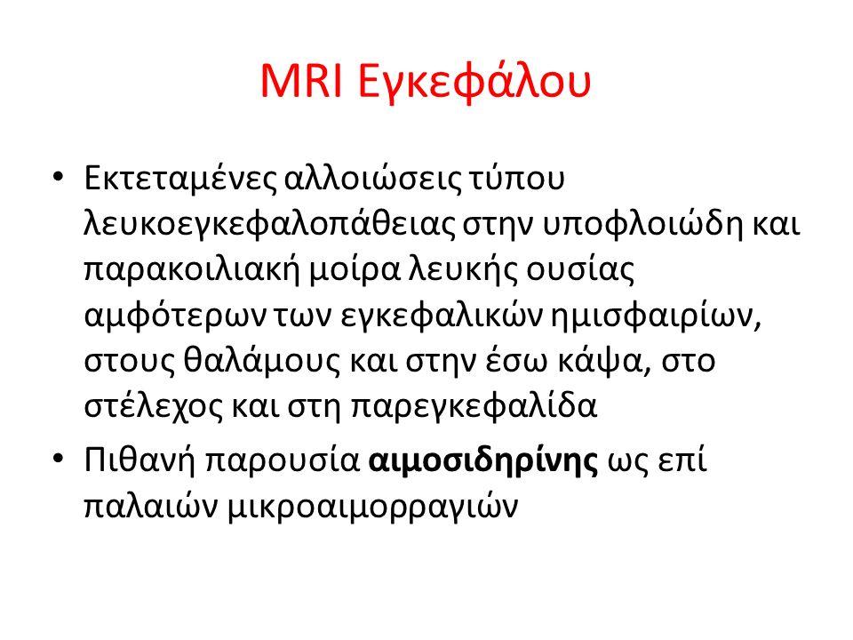 Οφθαλμολογική εκτίμηση Εκ της ΒΥΘΟΣΚΟΠΗΣΗΣ: παρουσία φλογοειδών αιμορραγιών και οιδήματος οπτικής θηλής στον αριστερό οφθαλμό Οπτική οξύτητα: 10/10 (ΔΕ), 2/10 (ΑΡ) Ενδοφθάλμια πίεση: 13/14 mmHg (ΔΕ/ΑΡ) Σύσταση για OCT