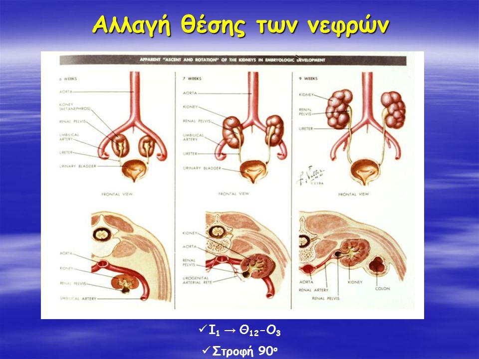 Αλλαγή θέσης των νεφρών Ι 1 → Θ 12 -Ο 3 Στροφή 90 ο
