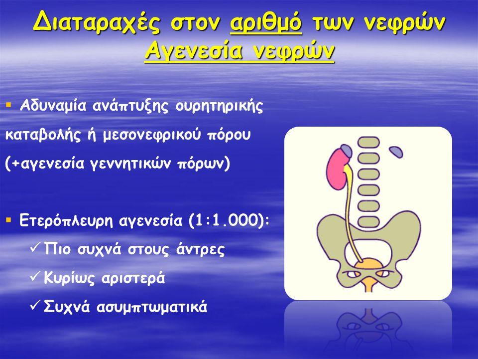 Διαταραχές στον αριθμό των νεφρών Αγενεσία νεφρών  Αδυναμία ανάπτυξης ουρητηρικής καταβολής ή μεσονεφρικού πόρου (+αγενεσία γεννητικών πόρων)  Ετερό
