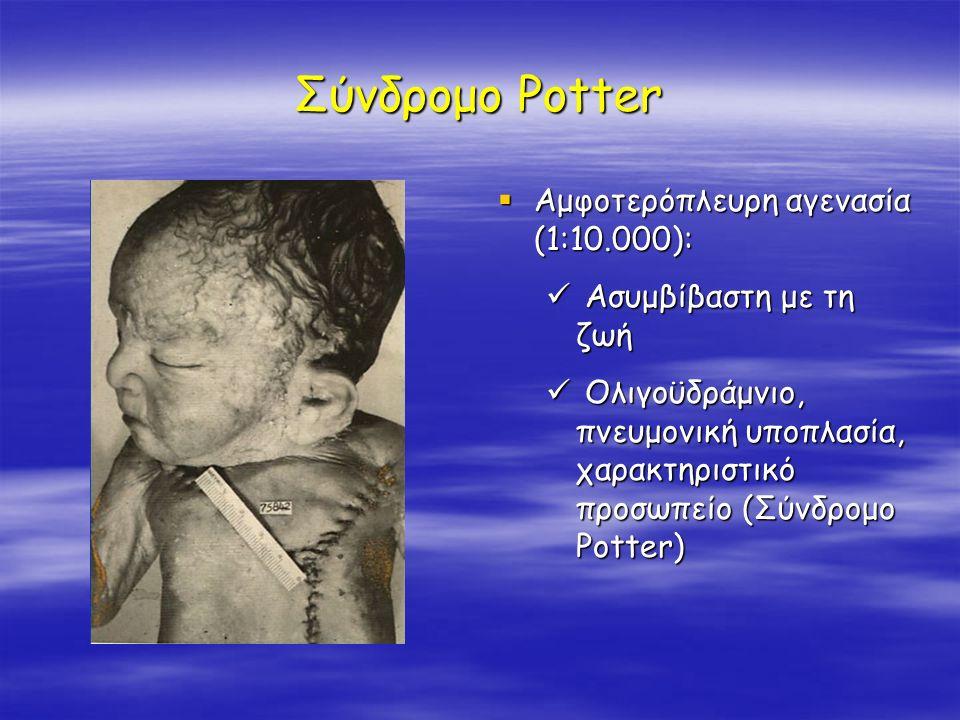 Σύνδρομο Potter  Αμφοτερόπλευρη αγενασία (1:10.000): Ασυμβίβαστη με τη ζωή Ολιγοϋδράμνιο, πνευμονική υποπλασία, χαρακτηριστικό προσωπείο (Σύνδρομο Po