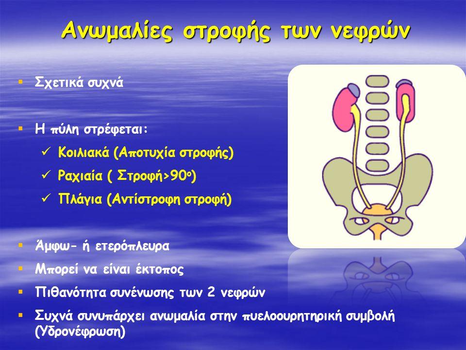 Ανωμαλίες στροφής των νεφρών  Σχετικά συχνά  Η πύλη στρέφεται: Κοιλιακά (Αποτυχία στροφής) Ραχιαία ( Στροφή›90 ο ) Πλάγια (Αντίστροφη στροφή)  Άμφω