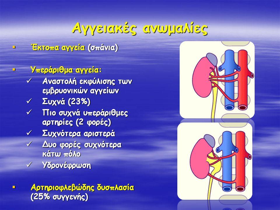 Αγγειακές ανωμαλίες  Έκτοπα αγγεία (σπάνια)  Υπεράριθμα αγγεία: Αναστολή εκφύλισης των εμβρυονικών αγγείων Αναστολή εκφύλισης των εμβρυονικών αγγείω