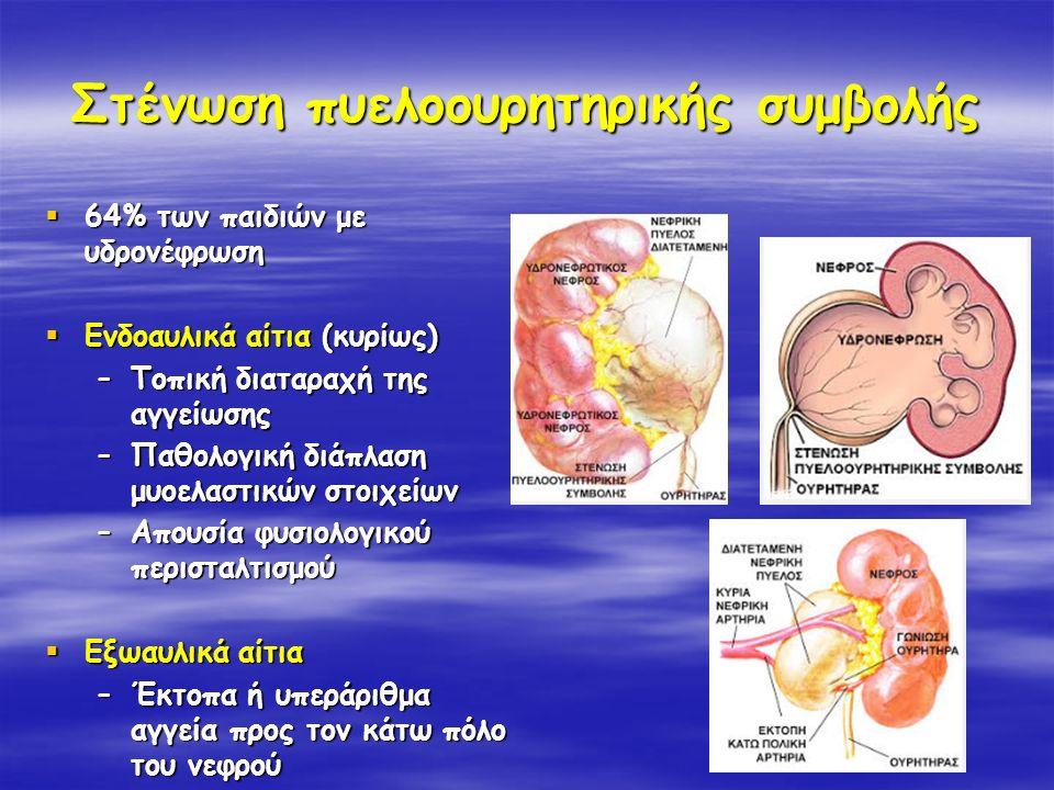 Στένωση πυελοουρητηρικής συμβολής  64% των παιδιών με υδρονέφρωση  Ενδοαυλικά αίτια (κυρίως) –Τοπική διαταραχή της αγγείωσης –Παθολογική διάπλαση μυ