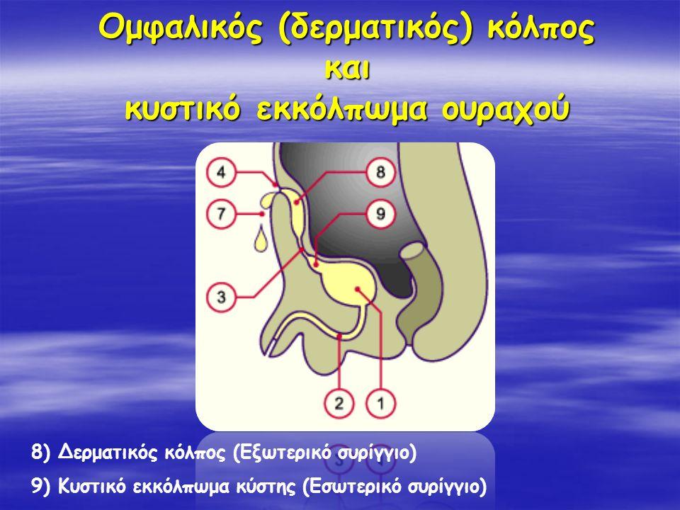 Ομφαλικός (δερματικός) κόλπος και κυστικό εκκόλπωμα ουραχού 8) Δερματικός κόλπος (Εξωτερικό συρίγγιο) 9) Κυστικό εκκόλπωμα κύστης (Εσωτερικό συρίγγιο)