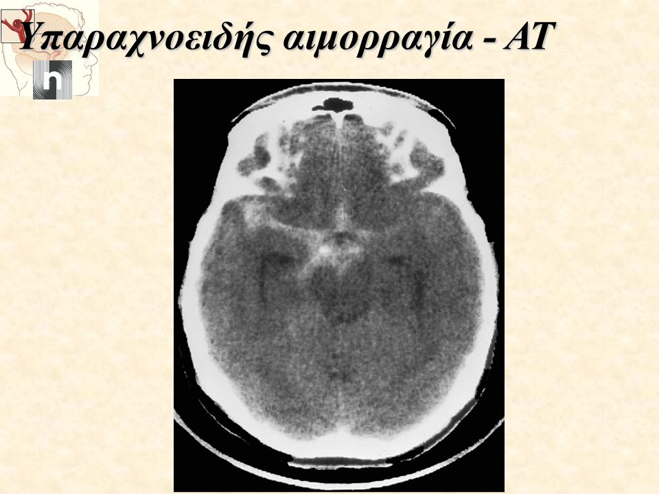 Υπαραχνοειδής αιμορραγία - ΑΤ Υπαραχνοειδής αιμορραγία - ΑΤ