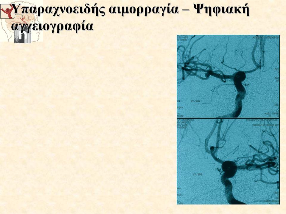 Υπαραχνοειδής αιμορραγία – Ψηφιακή αγγειογραφία