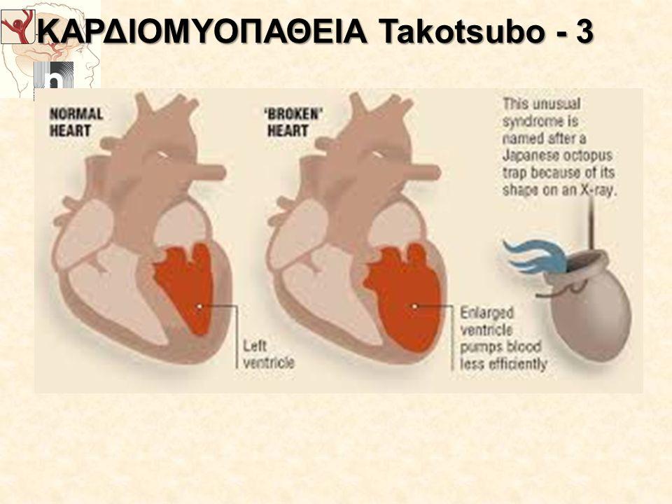 ΚΑΡΔΙΟΜΥΟΠΑΘΕΙΑ Takotsubo - 3
