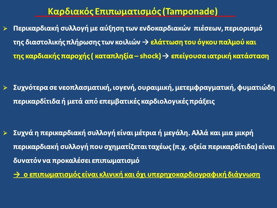 Καρδιακός Επιπωματισμός (Tamponade)  Περικαρδιακή συλλογή με αύξηση των ενδοκαρδιακών πιέσεων, περιορισμό της διαστολικής πλήρωσης των κοιλιών → ελάττωση του όγκου παλμού και της καρδιακής παροχής ( καταπληξία – shock) → επείγουσα ιατρική κατάσταση  Συχνότερα σε νεοπλασματική, ιογενή, ουραιμική, μετεμφραγματική, φυματιώδη περικαρδίτιδα ή μετά από επεμβατικές καρδιολογικές πράξεις  Συχνά η περικαρδιακή συλλογή είναι μέτρια ή μεγάλη.