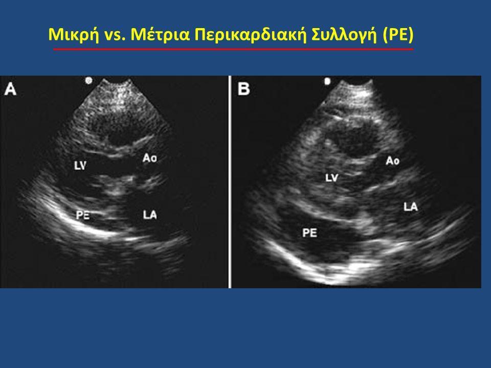 Μικρή vs. Μέτρια Περικαρδιακή Συλλογή (PE)