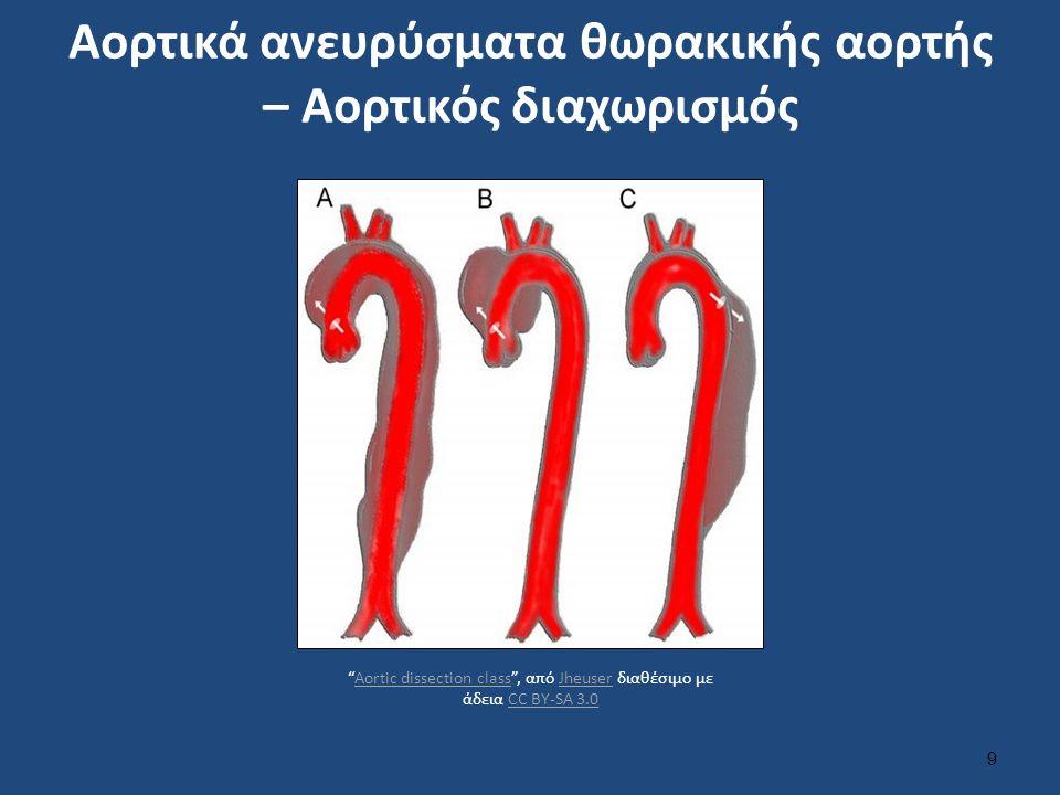 Αορτικά ανευρύσματα θωρακικής αορτής – Αορτικός διαχωρισμός 9 Aortic dissection class , από Jheuser διαθέσιμο με άδεια CC BY-SA 3.0Aortic dissection classJheuserCC BY-SA 3.0