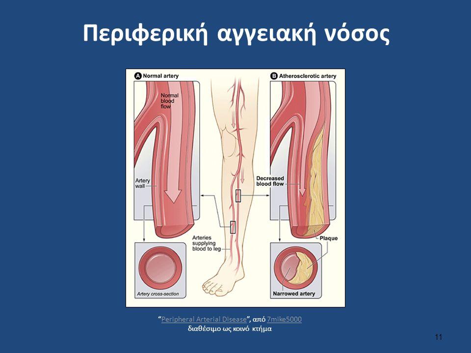 Περιφερική αγγειακή νόσος 11 Peripheral Arterial Disease , από 7mike5000 διαθέσιμο ως κοινό κτήμαPeripheral Arterial Disease7mike5000