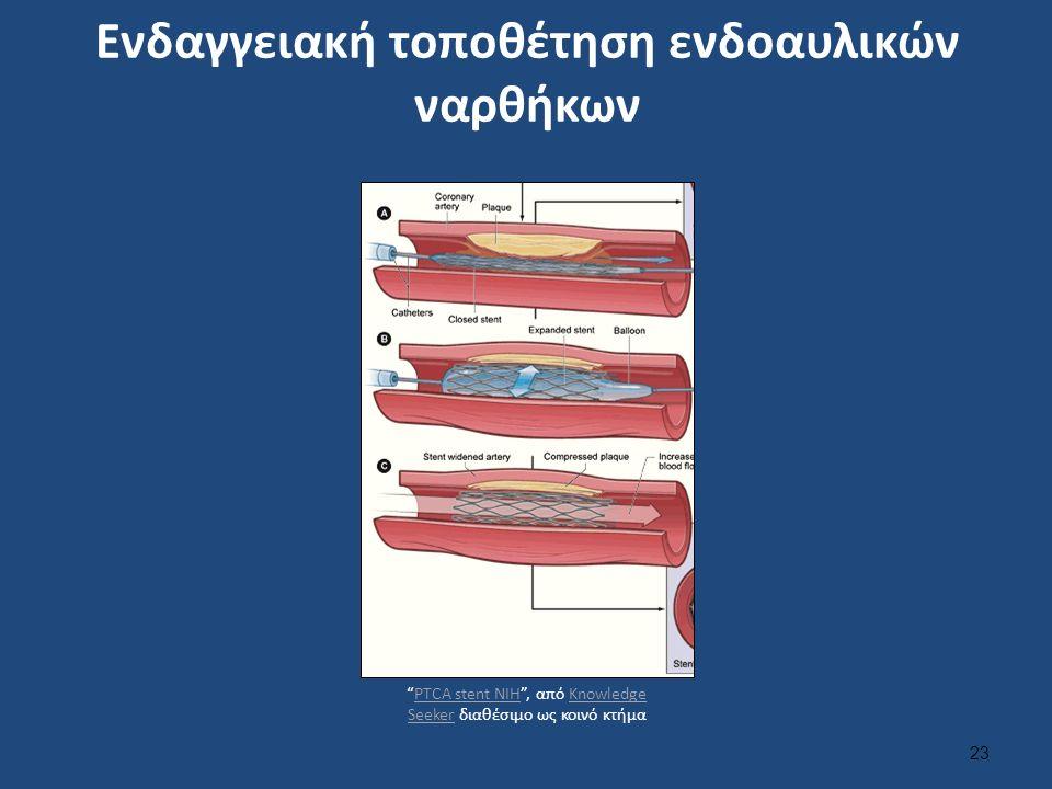 Ενδαγγειακή τοποθέτηση ενδοαυλικών ναρθήκων 23 PTCA stent NIH , από Knowledge Seeker διαθέσιμο ως κοινό κτήμαPTCA stent NIHKnowledge Seeker