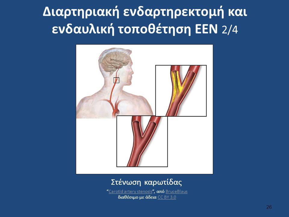 Διαρτηριακή ενδαρτηρεκτομή και ενδαυλική τοποθέτηση ΕΕΝ 2/4 26 Στένωση καρωτίδας Carotid artery stenosis , από BruceBlaus διαθέσιμο με άδεια CC BY 3.0Carotid artery stenosisBruceBlausCC BY 3.0