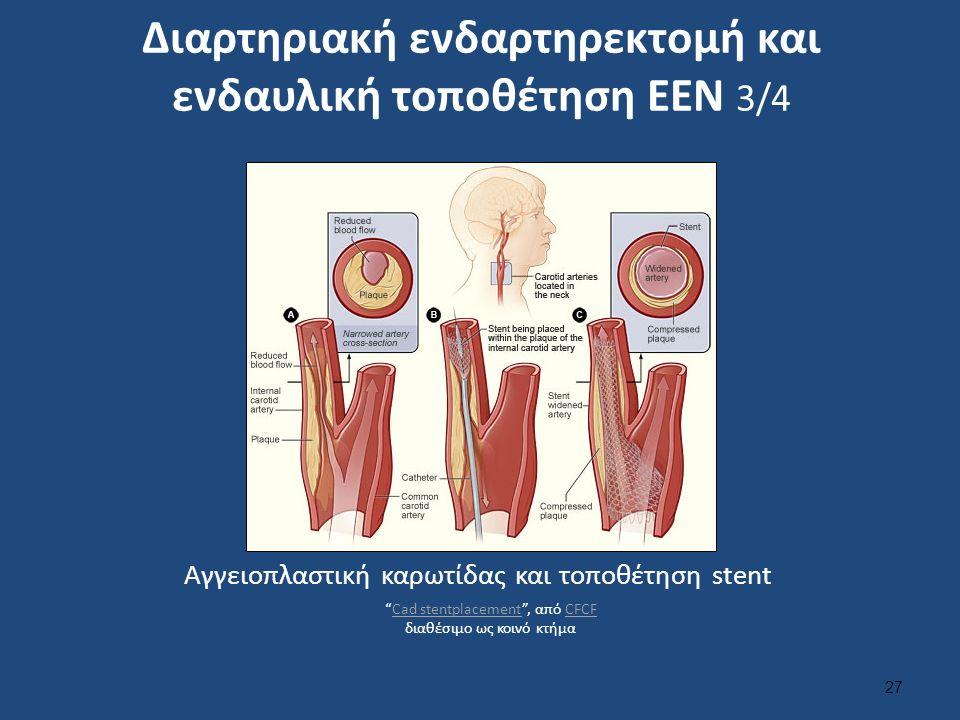 Διαρτηριακή ενδαρτηρεκτομή και ενδαυλική τοποθέτηση ΕΕΝ 3/4 27 Αγγειοπλαστική καρωτίδας και τοποθέτηση stent Cad stentplacement , από CFCF διαθέσιμο ως κοινό κτήμαCad stentplacementCFCF